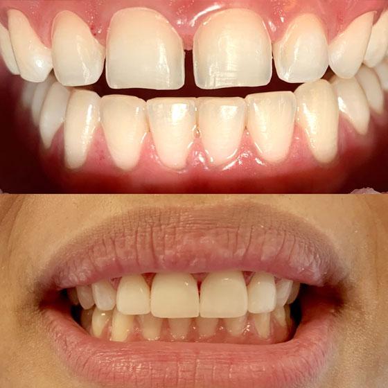 facings tandarts dentxperts amsterdam