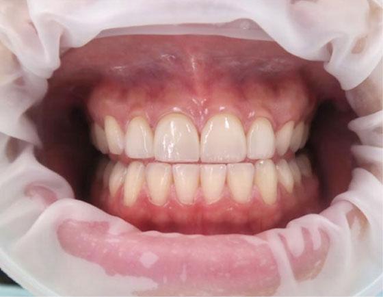 tanden bleken voorbereiding